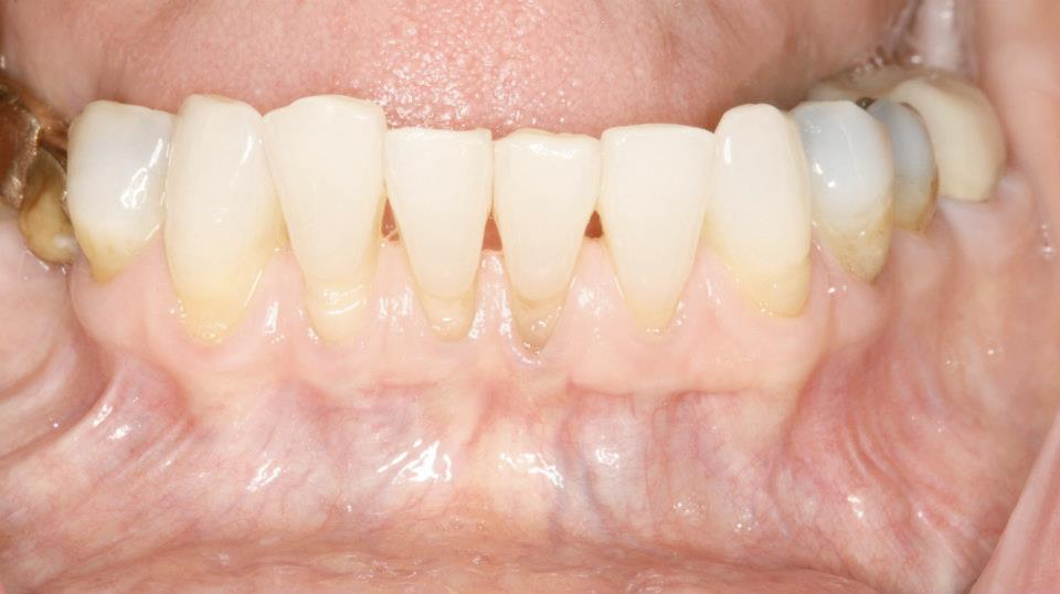 Before the Connective Tissue Graft   We know how to evaluate the success rate of each individual gum recession case.