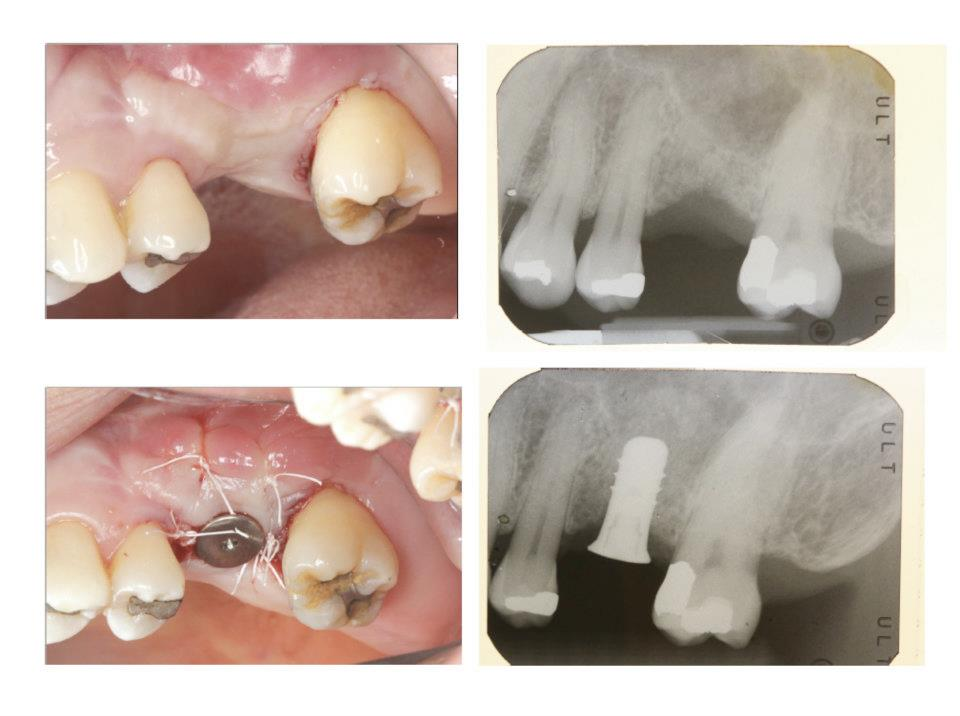 Implant Placement with Simultaneous Internal Sinus Lift   We do exclusively internal sinus lift and never the traumatic and painful lateral window sinus lift.  If you need sinus lift for your implant, come seek our opinion! Our minimally invasive internal sinus lift technique is unique and has an amazingly high success rate.   Internal sinus lift is done on the same visit your implant is placed!