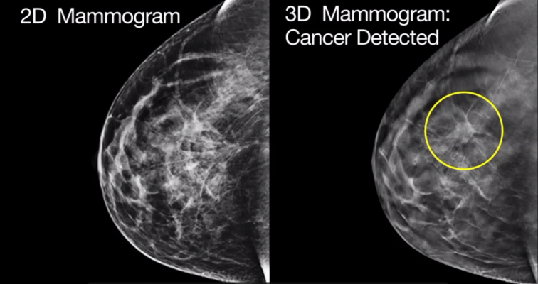 A small cancer that went undetected in a traditional 2D mammography scan (left) was detected in a 3D mammogram (right).