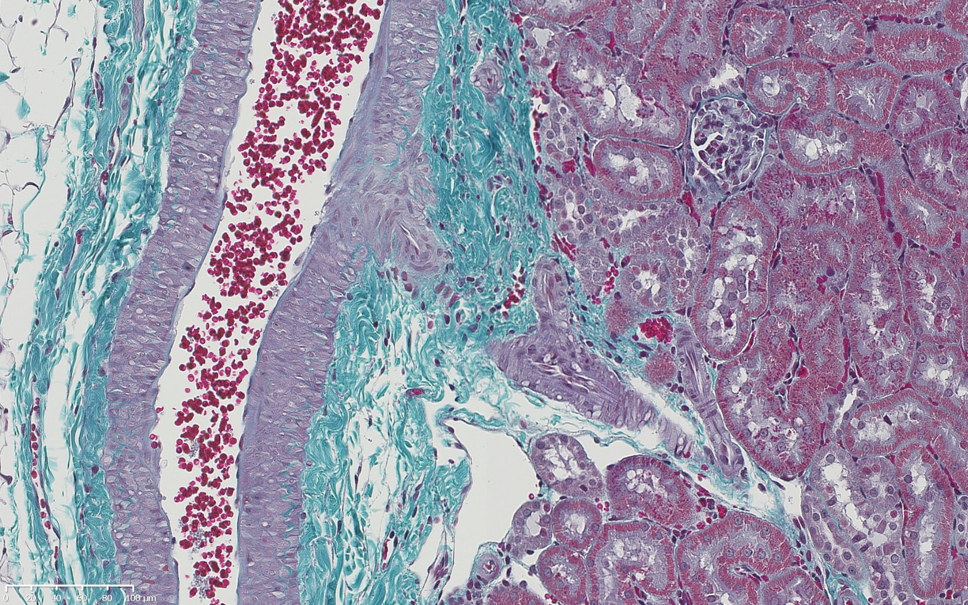 01   Masson's Trichrome stain demonstrating collagen in blue/green, muscle, red blood cells and fibrin in red nuclei in blue/black.