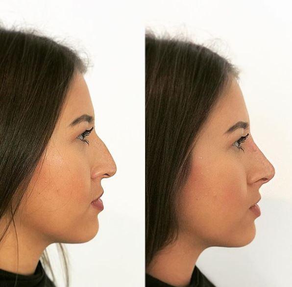 Non-Surgical Nose Job — Wellington Cosmetics