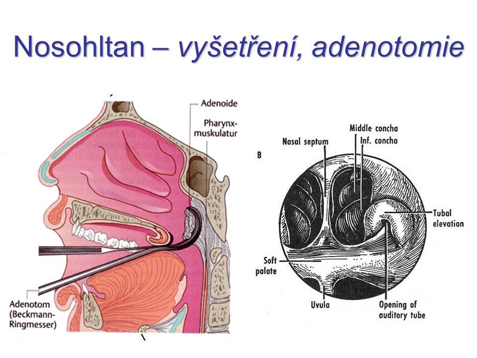 Endoskopická adenotomie