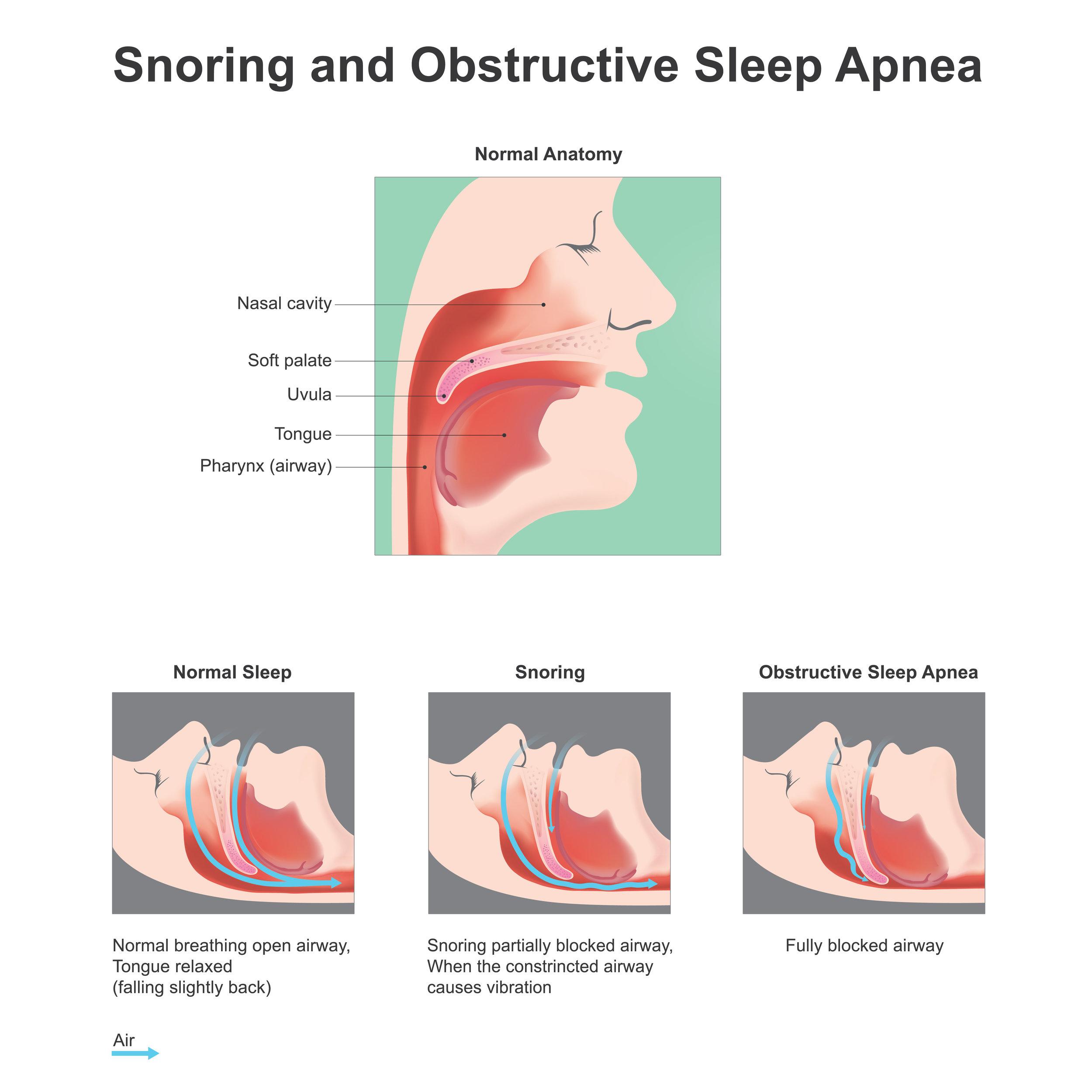 Snoring image.jpg