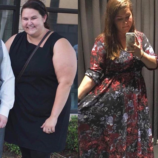 "Check out @vsgdeb amazing progress! ""Hi Simone,  Last year, at 340 lbs (150 kg) I came across your Instagram. I was so incredibly unhealthy and I had given up on myself. Your story gave me hope in the fact that someone my age could get her life back and I made the choice to get a vertical sleeve. Well, here I am, 4 months post op, and I'm 100 lbs lighter and so much healthier. I have a LONG way to go, but I have so much hope. You and your posts changed my life. So thank you. I could not be more grateful. You are SO appreciated."""