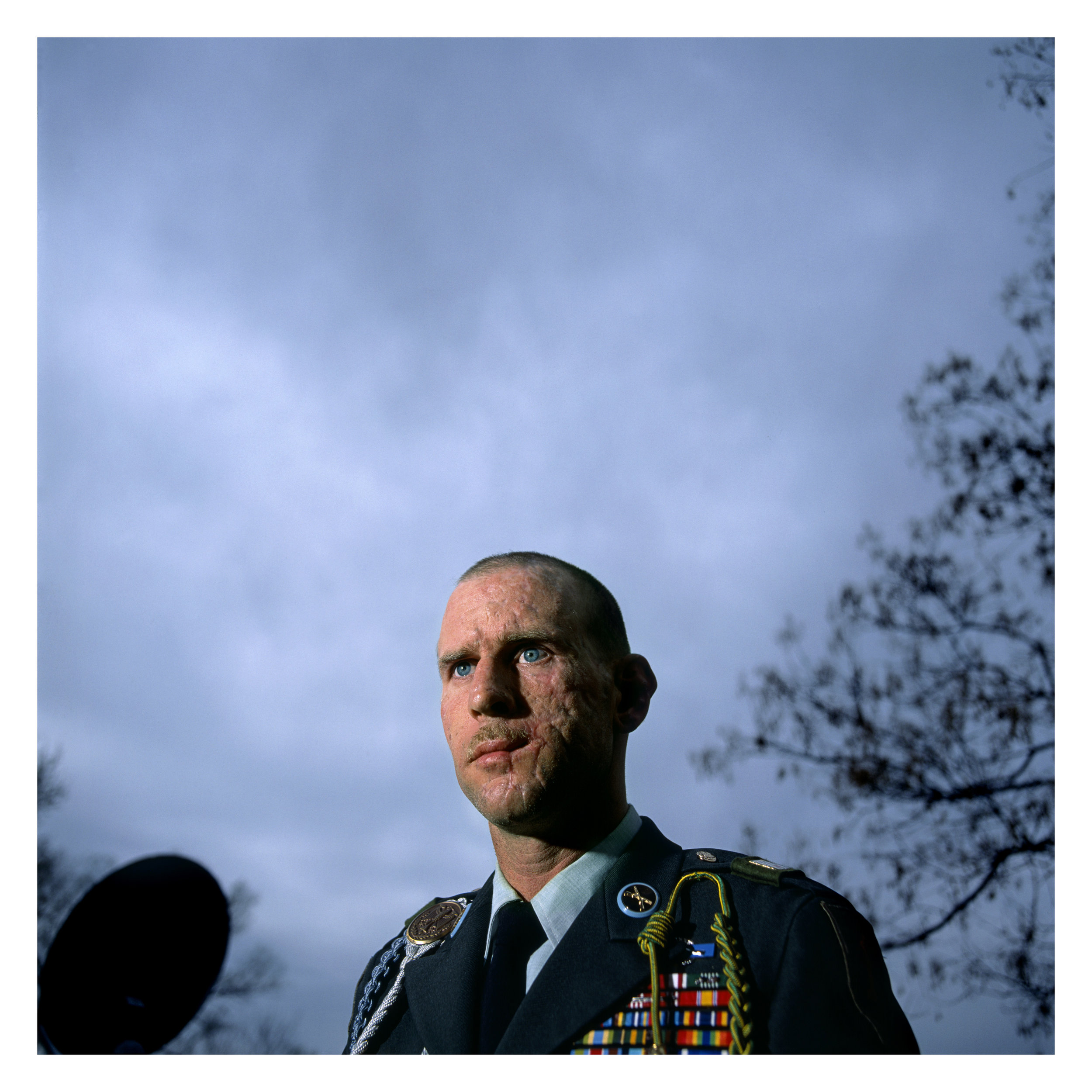 Sgt. 1st Class, Joseph Mosner, 35, 1st Brigade, 1st Infantry Division, was injured December 16, 2003 in Baghdad when a roadside bomb exploded. The blast ripped apart the left side of his face, his left ear and and took off his scalp down to the skull. He broke both of his legs, punctured a hole in his left bicep down to the bone, and sent shrapnel into his arms and chest. Photographed at his home on base at Ft. Riley, Kansas, April 9, 2004.