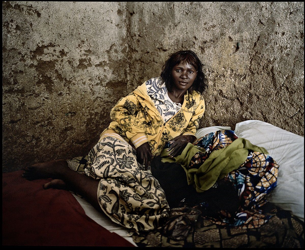 Nigeria, Dogo Nahawa, December 2011, Lydia Patrick, 25 years old, has been attacked with her village at night, in March 2010. She tried to protect her face with her hands, which have been cut. The attack was perpetrated by nomad pastoral Fulanis.