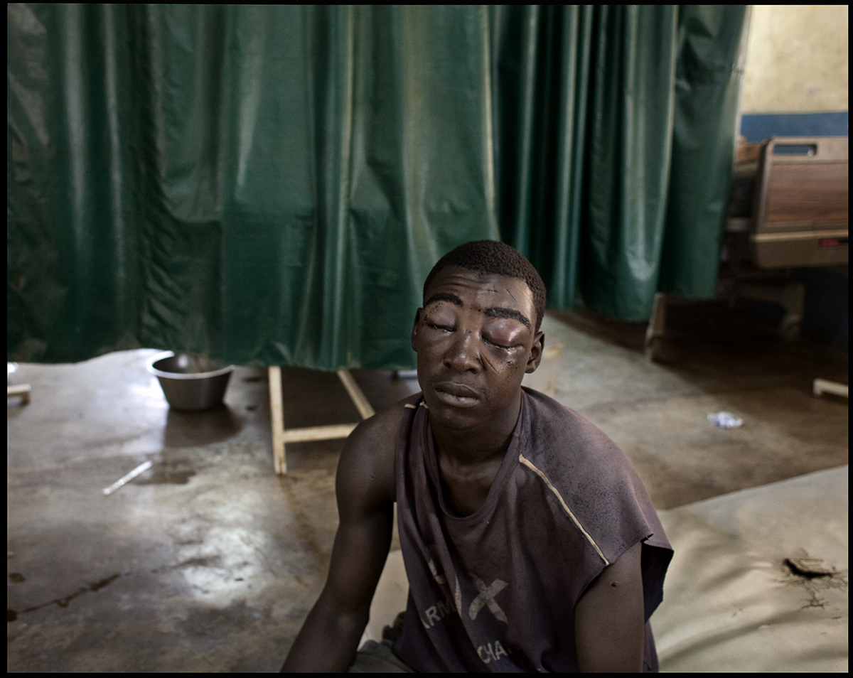 Nigeria, Kaduna, April 2011, After being seriously beaten up during post-electoral violence in April 2011, this young man awaits receiving care in the emergency room, at Saint Gerard Hospital.