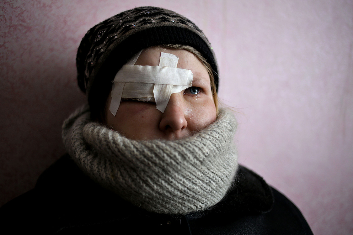 We were hiding in a basement during the shelling. Some unknown men wearing military uniforms and carrying AKs broke into the basement.They told us to get out, but we didn�t want to as it was still shelling outside.They pushed us out of the basement.One of them kicked me into an eye with a butt of the AK.The hospital was evacuated before so I just put a plaster on my eye.Yulia Novomlynets, 18, Myronivsky, Donetsk area.