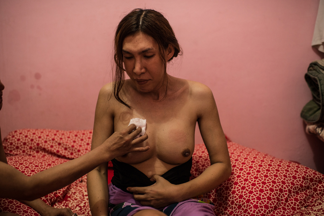 Susan, 27, after receiving collagen injections in her breast. Injecting collagen is the cheapest way for waria people to modify their body in order to align it with their soul: nose, cheeks, chin but also gluteus and breast are the most common parts to be transformed. Jakarta, Indonesia, 12th November 2015.