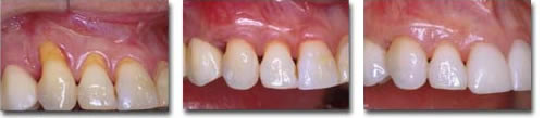 Gum Recession: before & after connective tissue root coverage/porcelain veneers are placed