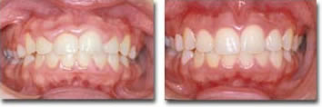 Before & after excess gum reshaping for enhanced esthetics & improved oral hygiene access