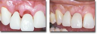 Healing after ridge preservation and before placement of a bridge