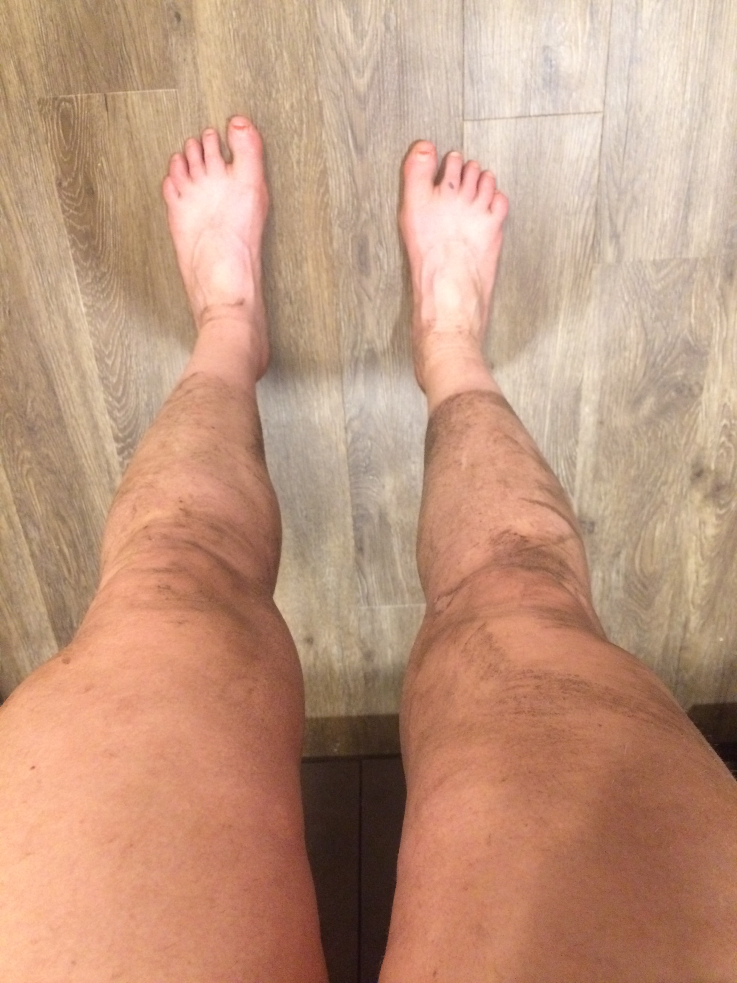 My legs after 14 miles of hiking...note the sock line