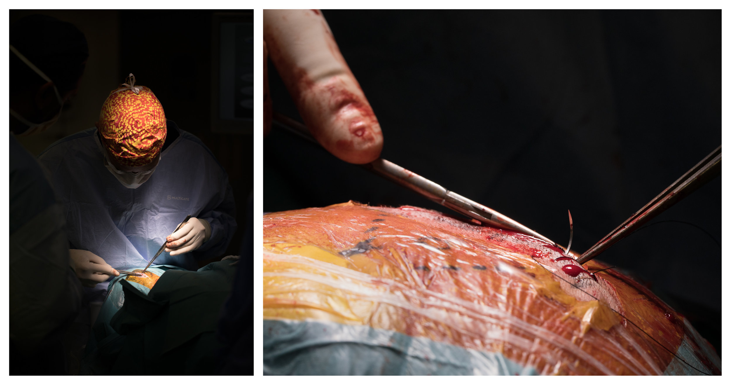 After removing a cyst from the brain, world renown neurosurgeon, Dr Charlie Teo stitches each layer of flesh together with as much skill and care as he used to make the first incisions 2 hours prior.