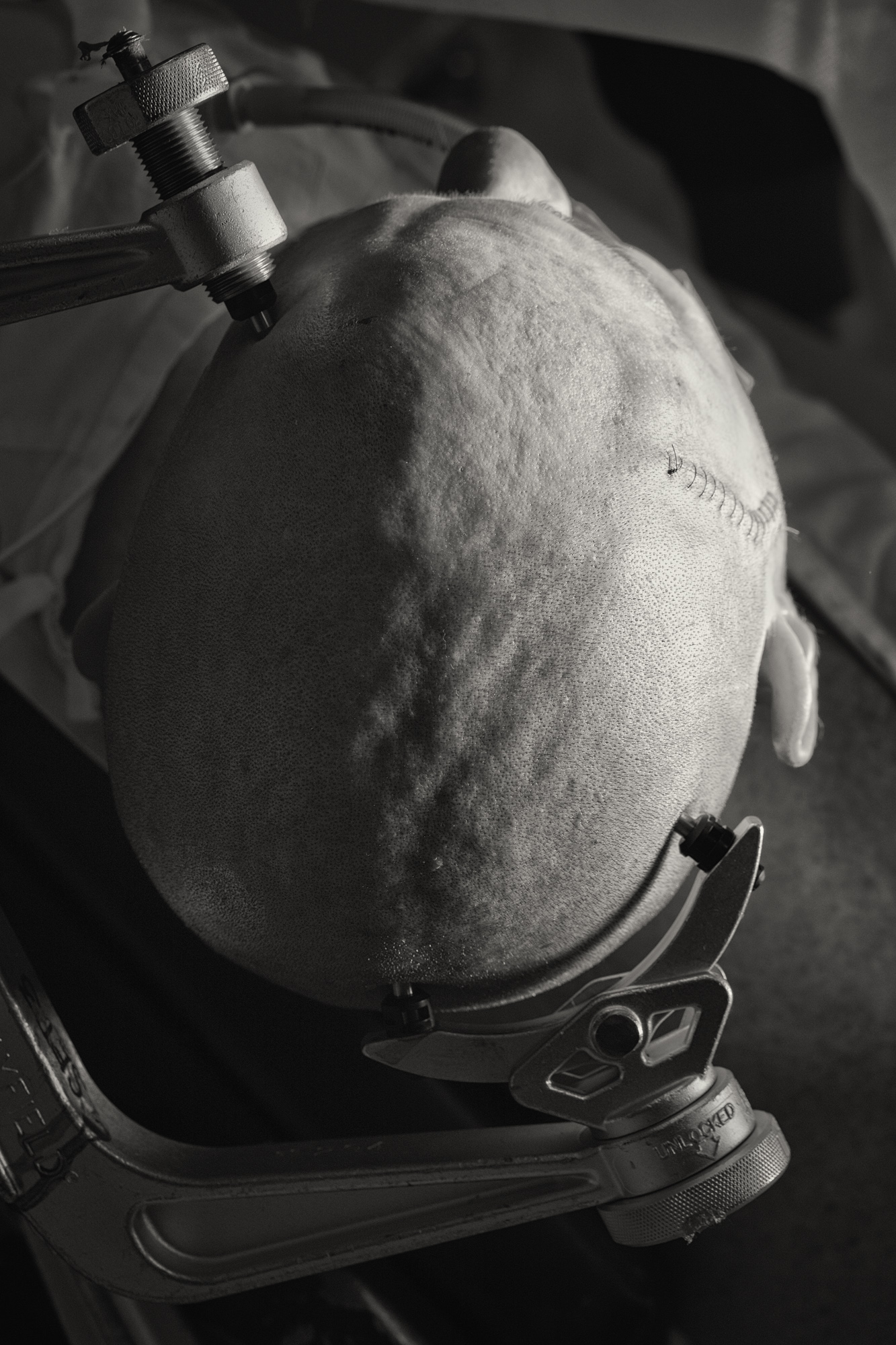 The patients head is clamped still with 3 spiked metal points for 3 hours while the golf-ball sized tumour is removed by world renown Neurosurgeon, Dr Charlie Teo. After the final stich is tied, the clamp is removed and replaced with a cushioned head-rest moments before the patient regains consciousness.