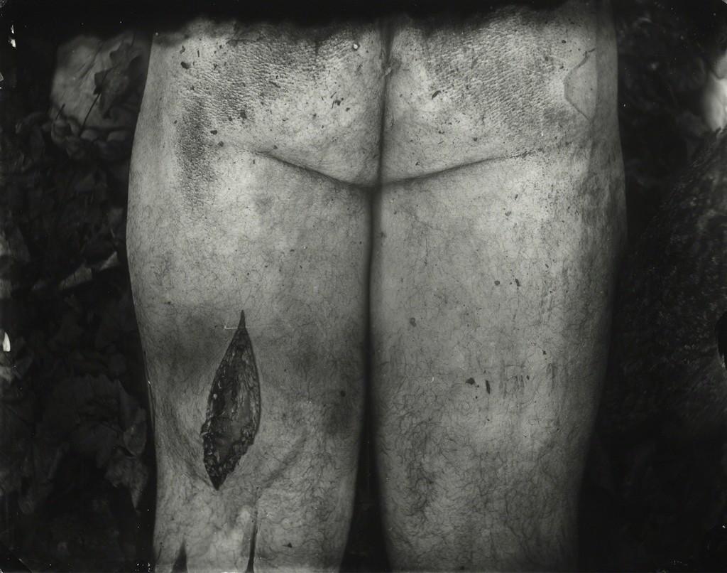 Untitled, Body Farm , 2001