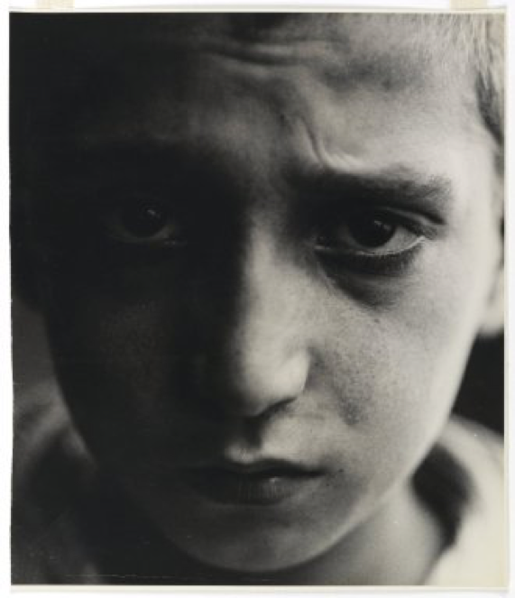 Malnutrition  (New York), 1928