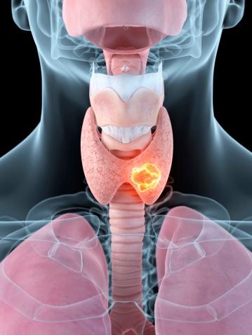 Goiter Symptoms Hyperthyroidism Hypothyroidism