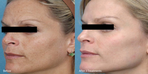 microneedle-before-and-after.jpg