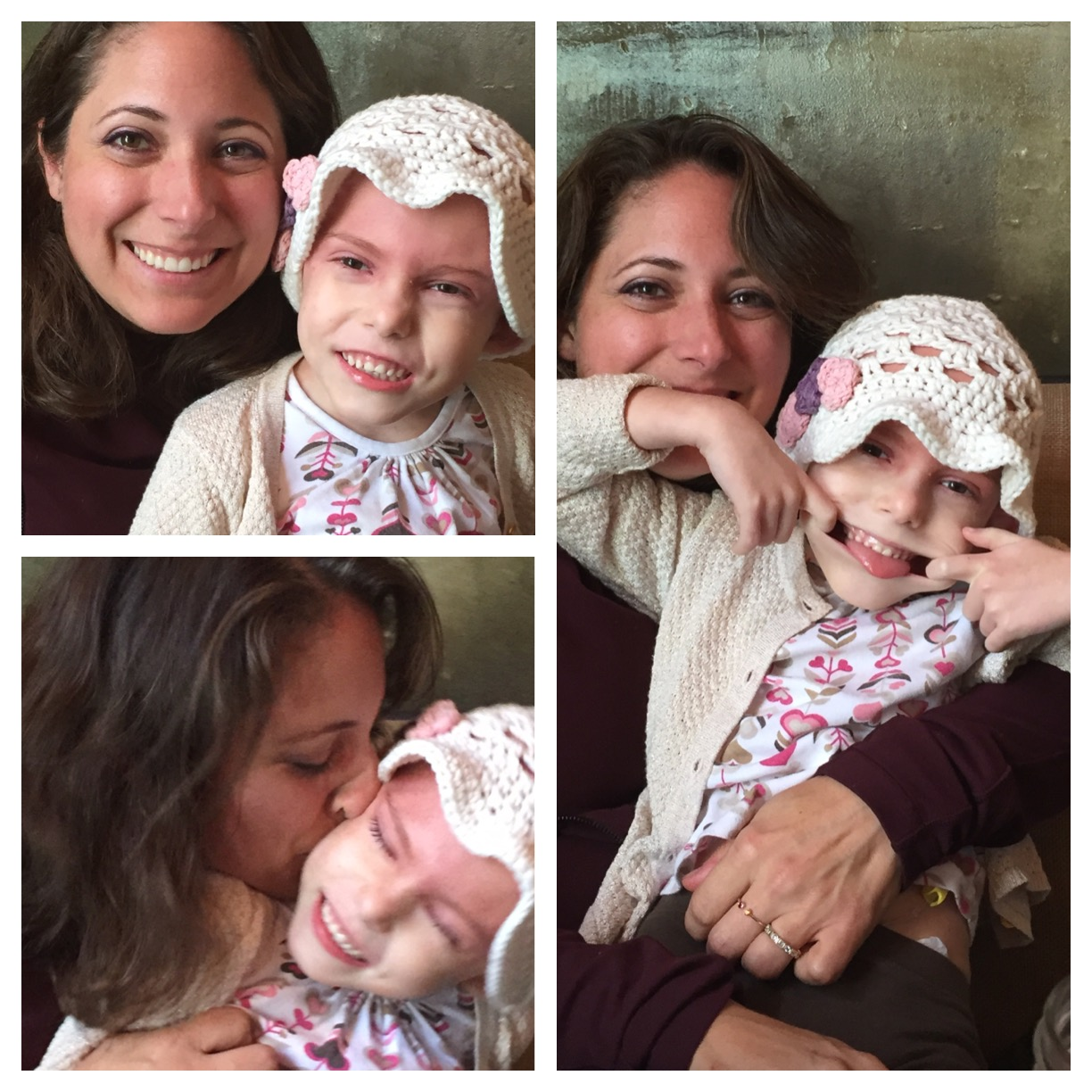 Pictured with her Auntie Shelley, after a radiation treatment. Amelita had bouts of rage, anger, uncontrollable emotional outbursts (which some parents warned us about, the heat from radiation just seems to have that affect), yet many days we were able to take her to eat, have fun, and bring out that incredible smile! You can visibly see the burn line of demarcation, just past her eyes.