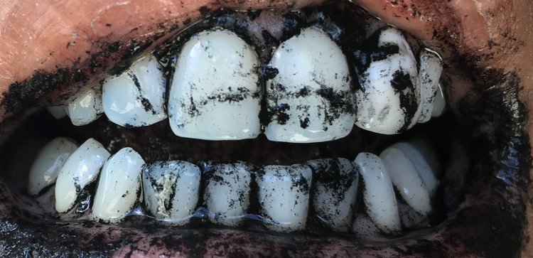 Natural Whitening, with Activated Charcoal Tooth Powder