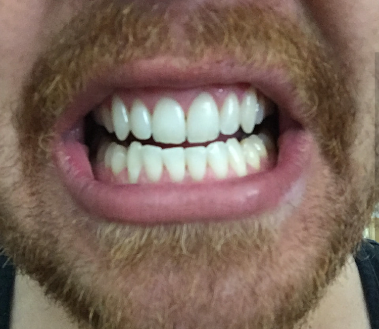ToothPowderBefore1.png