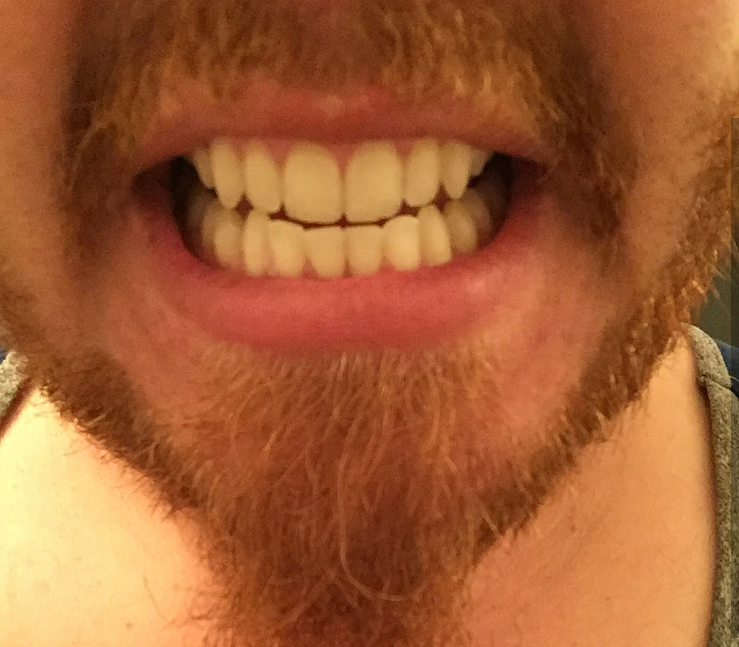 Tooth PowderBEfore.png