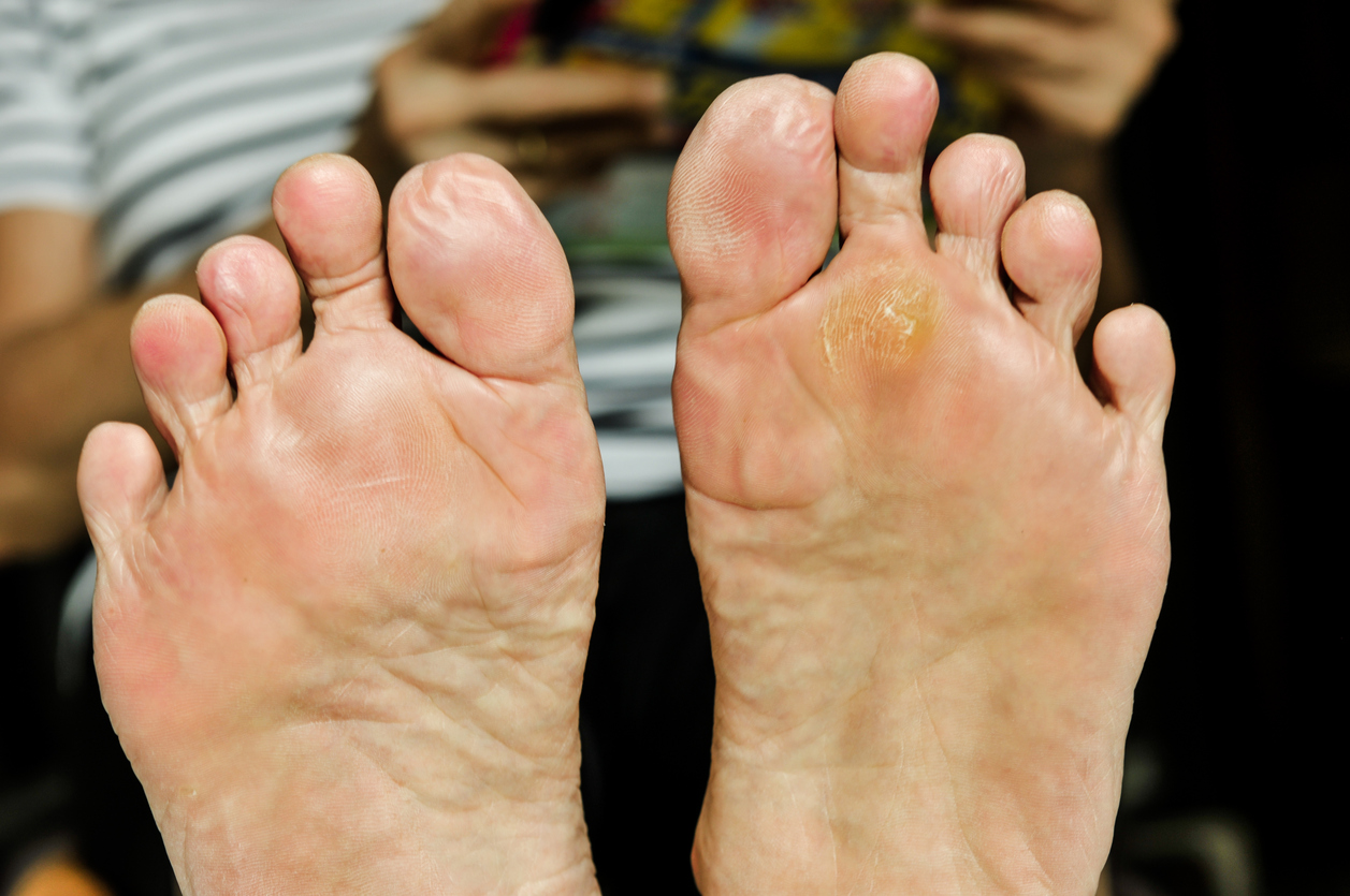calluses and corns on feet