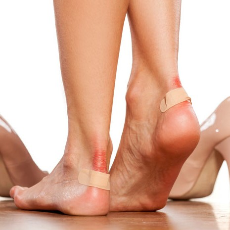 blisters and band-aids after wearing heels