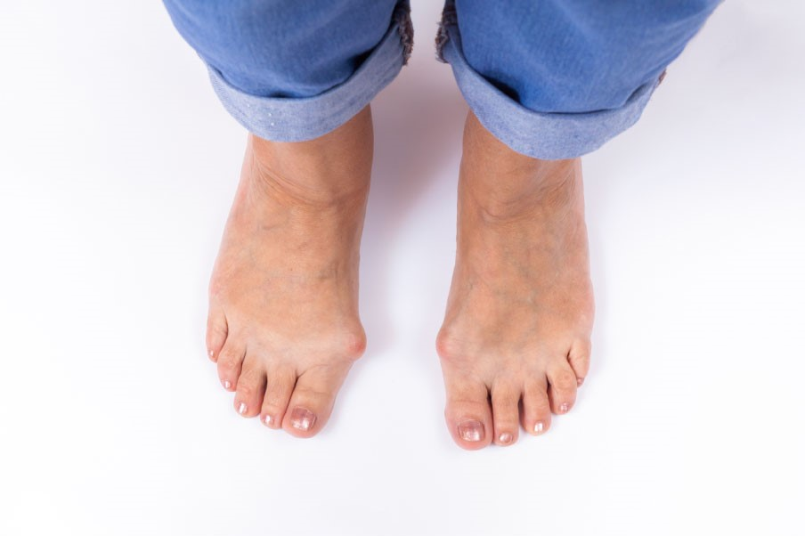 woman with bunions on both feet