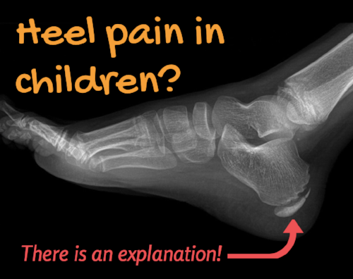 Heel Pain in Children blog post.png
