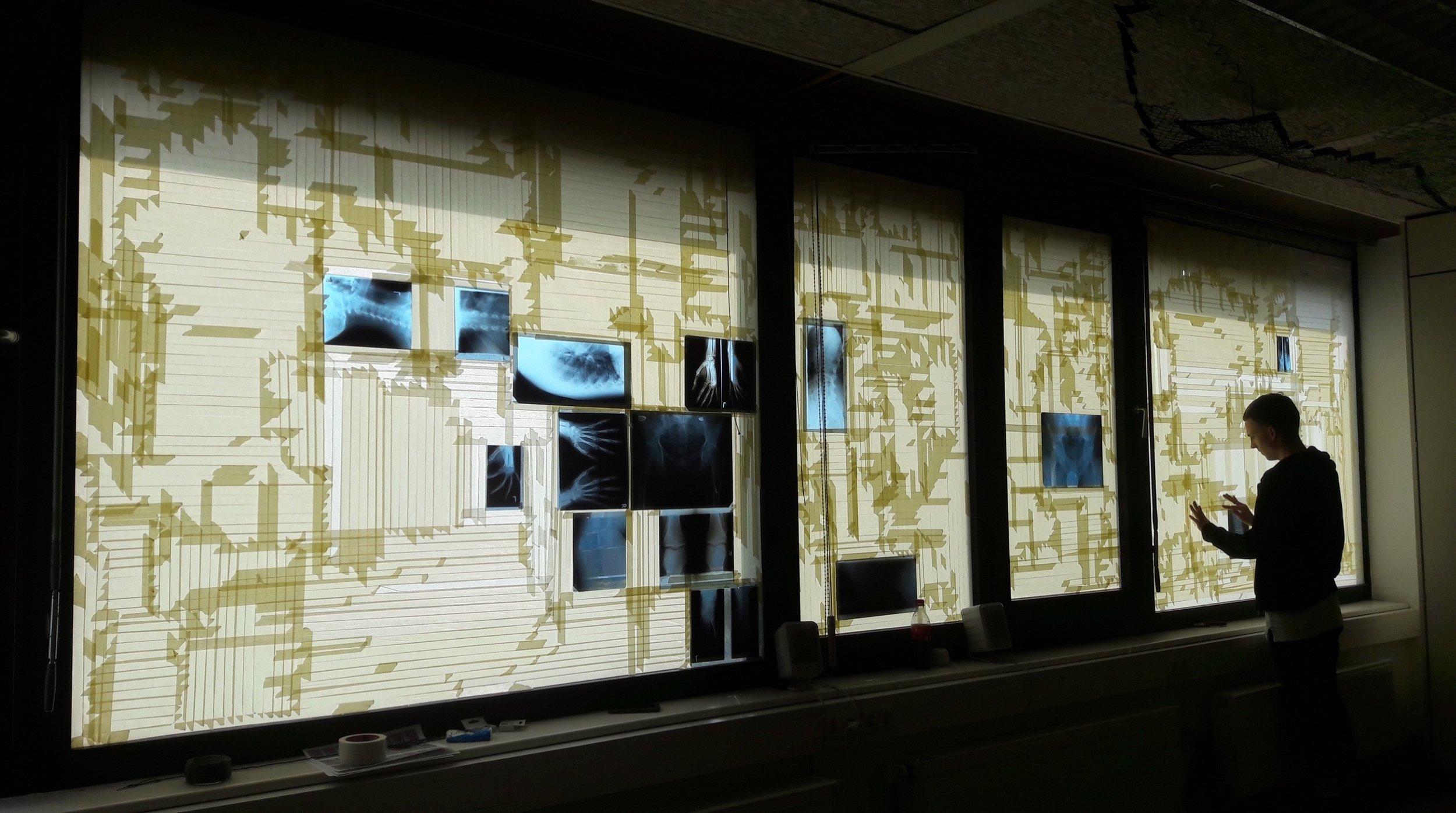 Adam Franz Winter, Ohne Titel, Kreppband, Röntgenbilder auf Fenster