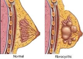 Figure 1 – Normal versus fibrocystic.