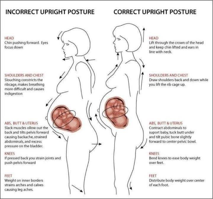 Figure 1 – Shows the effects of posture on a pregnant women's body. This simple concept may also either help alleviate or worsen constipation.
