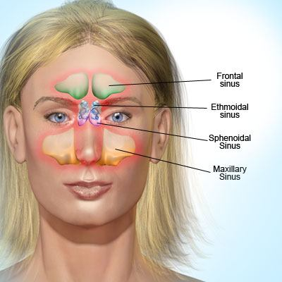 Figure 1 – These are the four sinuses (frontal, ethmoidal, sphenoidal, maxillary) where a woman will feel pressure and pain.