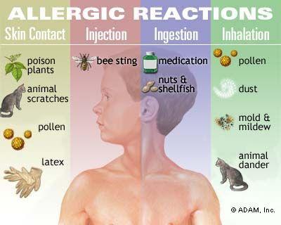 Figure 2 – Common allergy triggers.