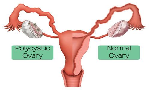 PCOS-Doctor-San-Diego-Polycystic-Ovary-Syndrome-Specialist-La-Jolla-Ca.-Sarapy-Clinic.jpg