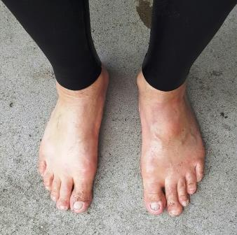Drew Feet.jpg
