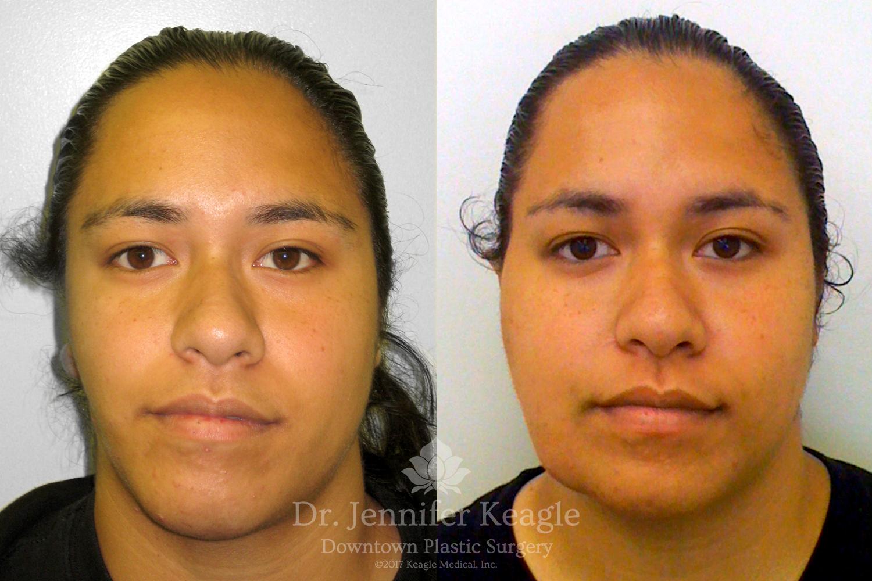 Dr-Jennifer-Keagle-Downtown-LA-Plastic-Surgery-IMG_8954