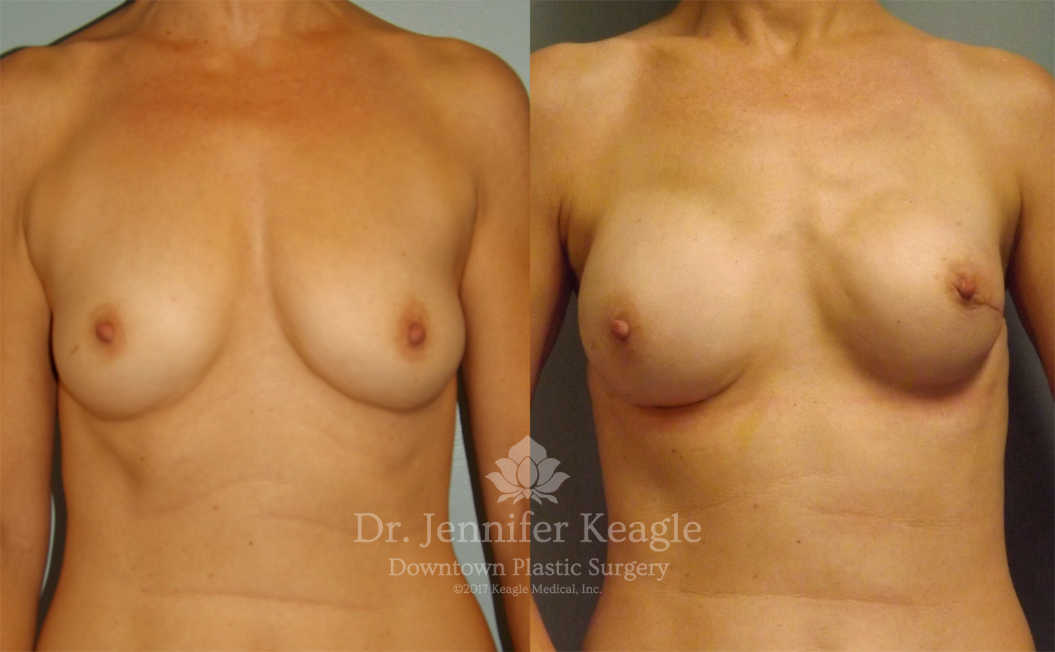 Breast reconstruction before and after bilateral nipple sparing mastectomy