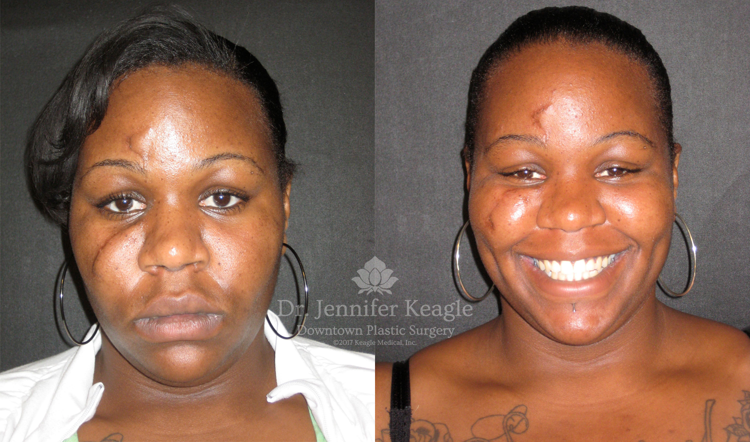 Scar revision before-after reconstructive plastic surgery by Dr. Jennifer Keagle