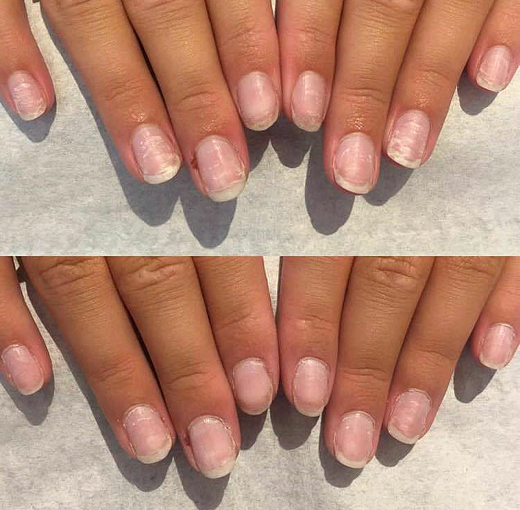 Even just one treatment of IBX makes a huge difference on brittle nails.