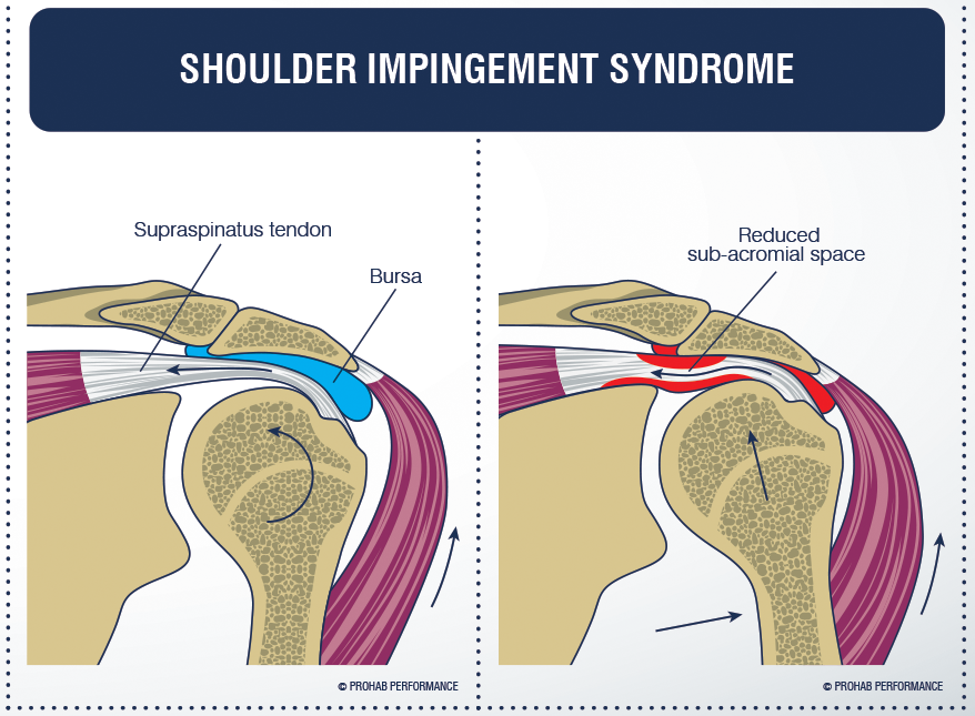 If the humerus is not controlled well, it will impinge onto structures.