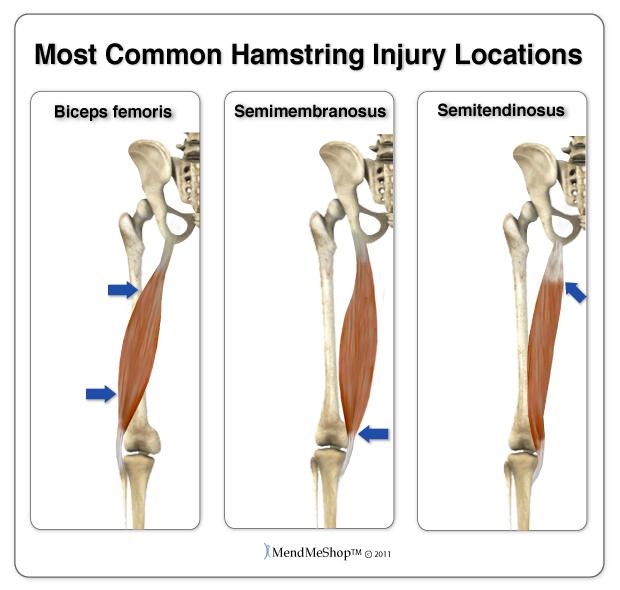 Hamstring Injury Locations.jpg