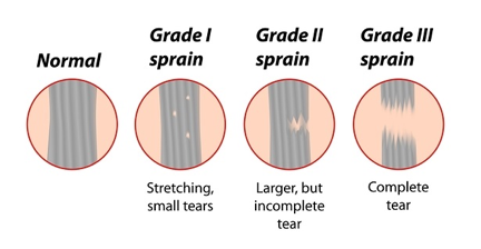 The three grades of ankle sprain, corresponding to the severity of ligament tear