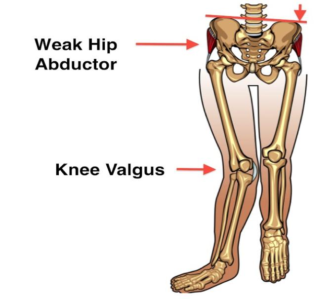 Hip abductor weakness knee valgus.png