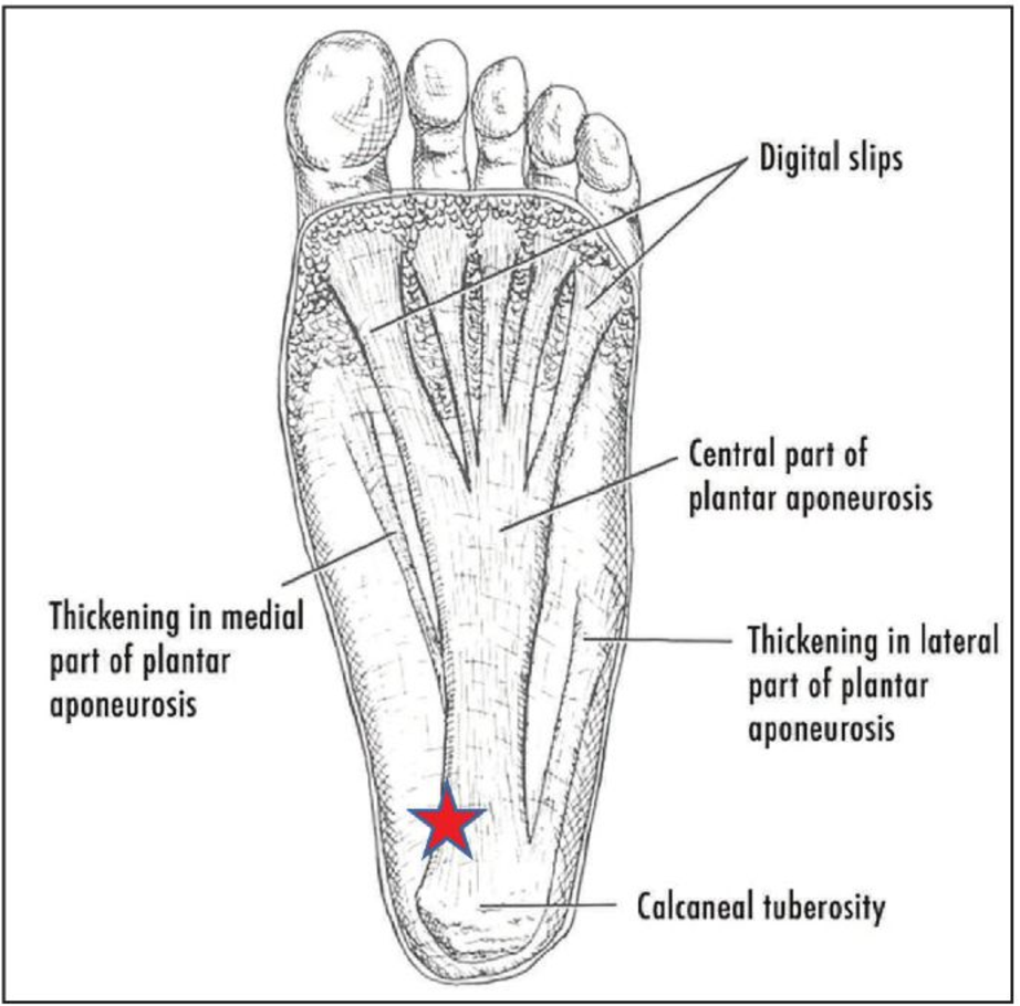 Plantar fascia anatomy three slips.png