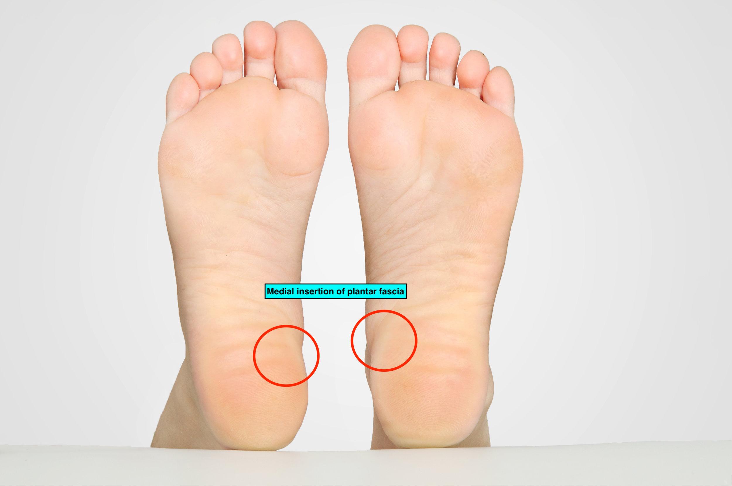 Sole of foot plantar fascia insertion.jpeg