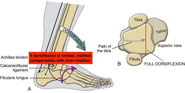 DF restriction midfoot compensation.jpg