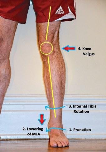 knee valgus foot pronation.jpg